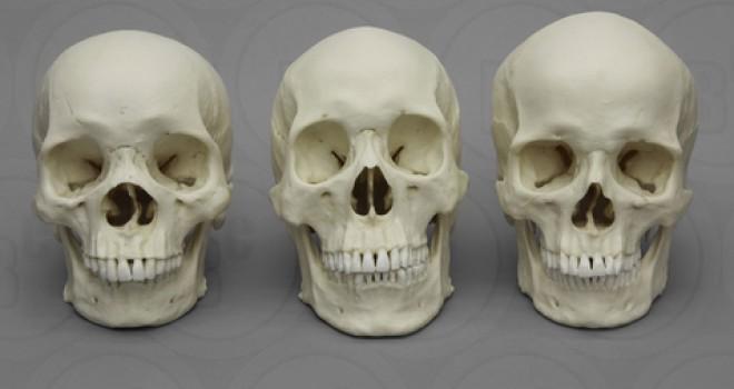 Anatomische modellen BoneClones