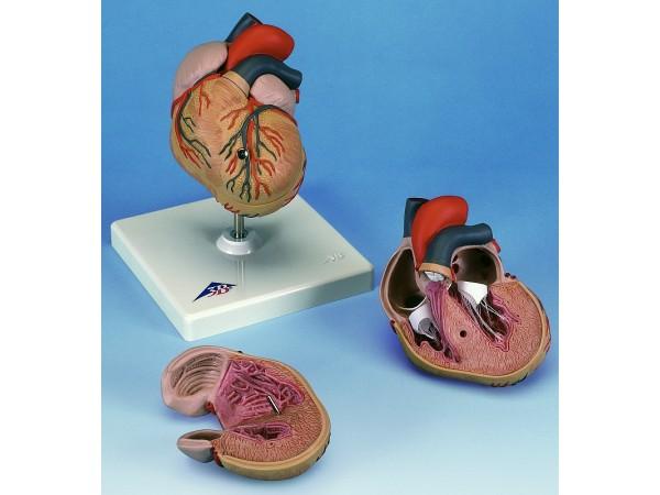 Klassiek hart met linker ventriculair hypertrofie(LHV) 2-delig