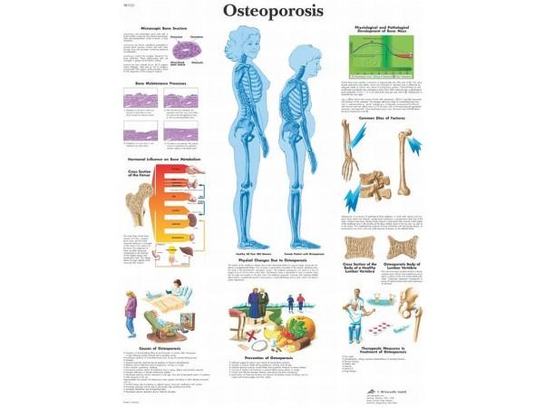 Osteoporosis, papieren wandplaat
