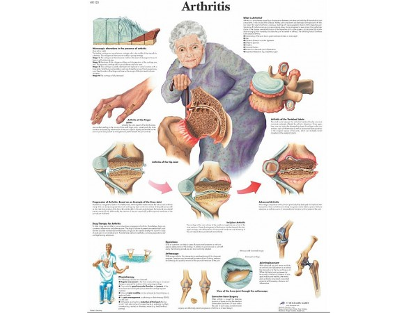 Arthritis, papieren wandplaat