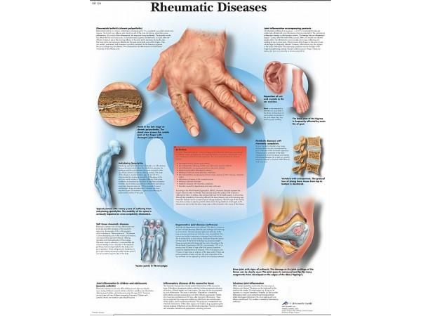 Reuma, papieren wandplaat