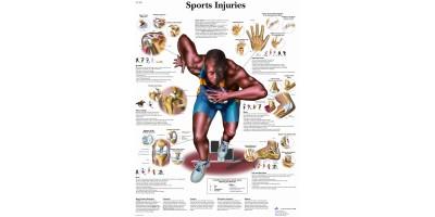 Sportblessures, gelamineerde wandplaat