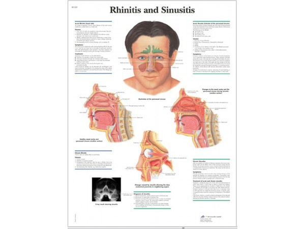 Rhinitis & Sinusitis, papieren wandplaat