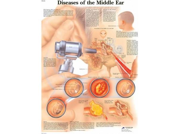 Ziektebeelden van het Middenoor, papieren wandplaat