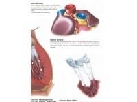 Hartziektes, papieren wandplaat