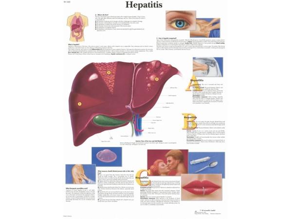 Hepatitis, papieren wandplaat