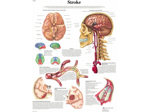 Hersenbloeding, gelamineerde wandplaat