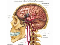 Hersenbloeding, papieren wandplaat