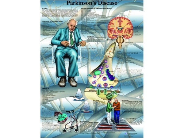 Parkinson, papieren wandplaat