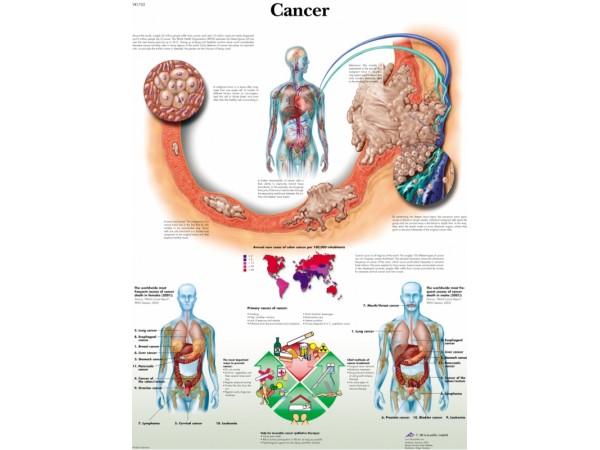 Kanker, papieren wandplaat