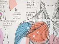 Trigger Point Charts, gehele lichaam, papier