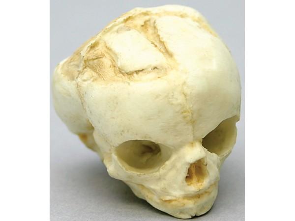 Foetus schedel 17 weken