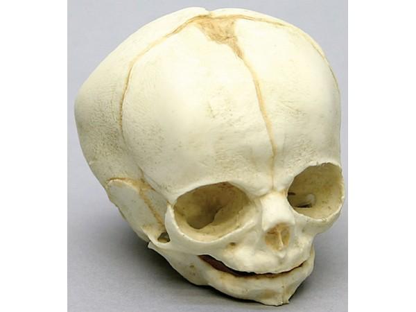 Foetus schedel 30 weken