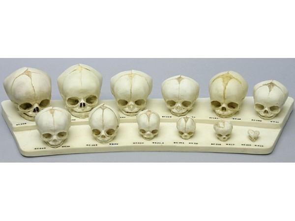 Foetus set van 12 schedels op standaard
