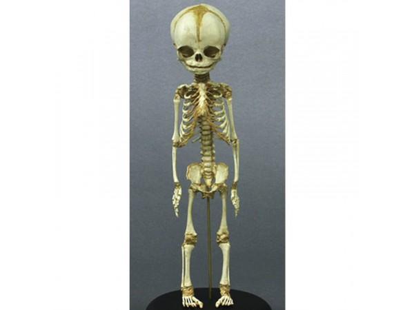Foetus skelet, vaste montage