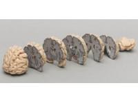 Hersenen, coronale doorsnedes