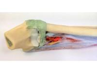 Onderarm en Hand, 3Dprint