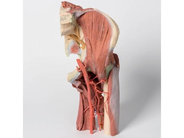 Linker heup & dij, diepe dissectie, 3Dprint