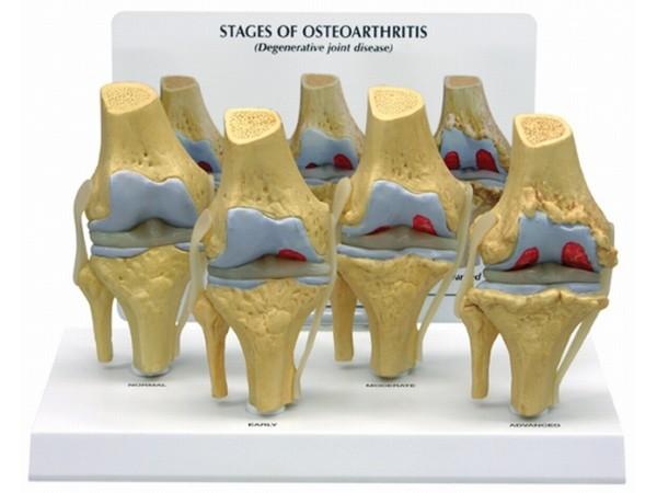 Knie, 4 stadia osteoarthritis