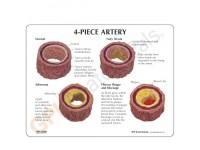 4delig Arteriemodel + infokaart