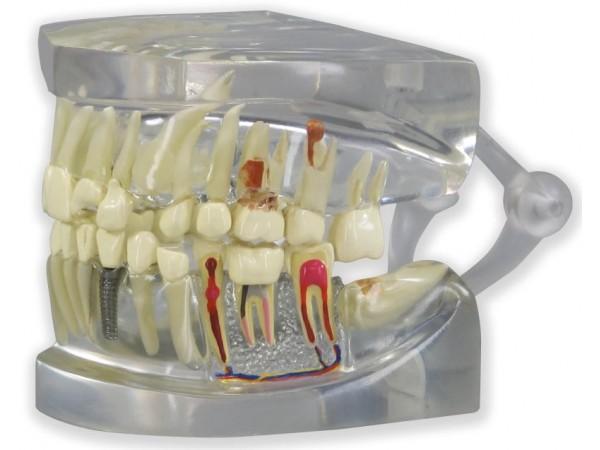 Transparant Kaakmodel met gebit