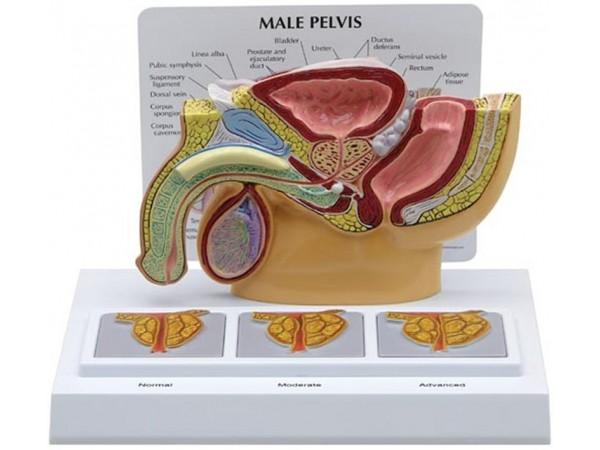 Mannelijk bekken doorsnede met reliëf-prostaat
