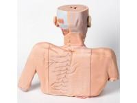 Hoofd-Nek-Schouder Angiosoom, 3Dprint