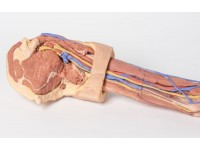 Linker Arm, 3Dprint