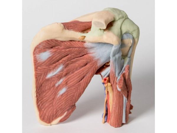 Schouder links, diepe dissectie, 3Dprint