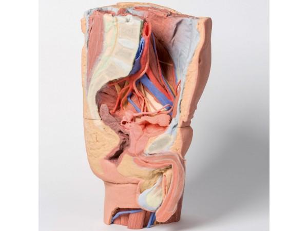 Mannelijk Linker Heup & proximale dij, 3Dprint