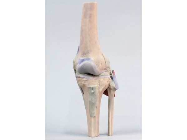 Knie, gestrekt, 3Dprint
