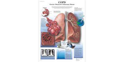 COPD Poster Papier