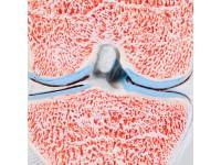 Kniegewricht doorsnede 3-delig