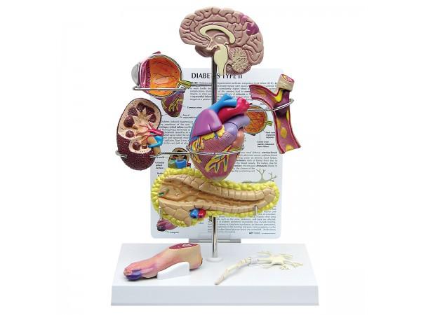 Diabetes Type 2 Model