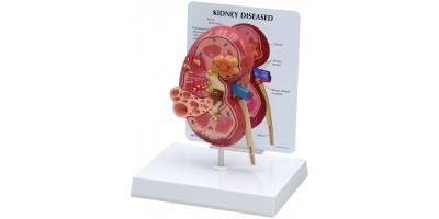 Niermodel met ziektebeelden + infokaart
