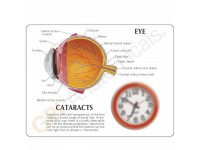 Oogmodel met staar (Cataract)