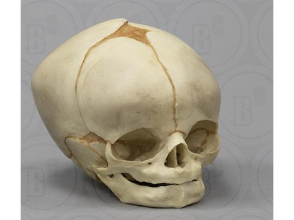 Foetus schedel pasgeborene 40,5 weken
