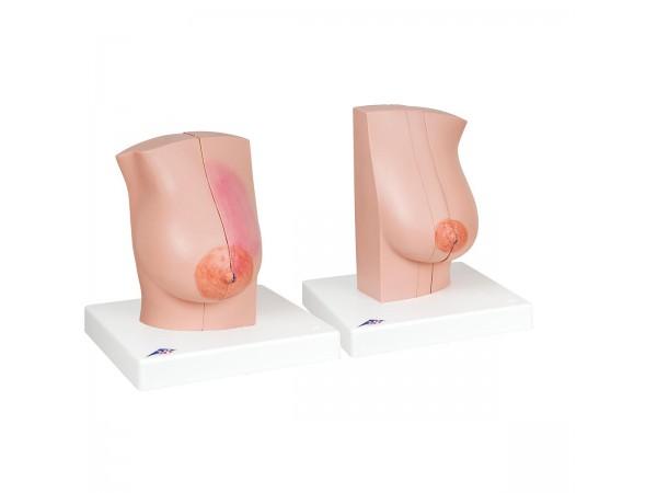 Vrouwelijke Borstmodellen Set