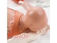 Model geboorteproces