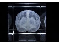 Anatomie Glasblok Hersenen