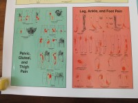Triggerpoint Pain Patterns Wall Charts