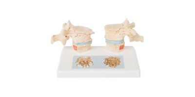 Osteoporose model